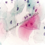 H562     Squamous, Epithelia, Cervical PAP smear